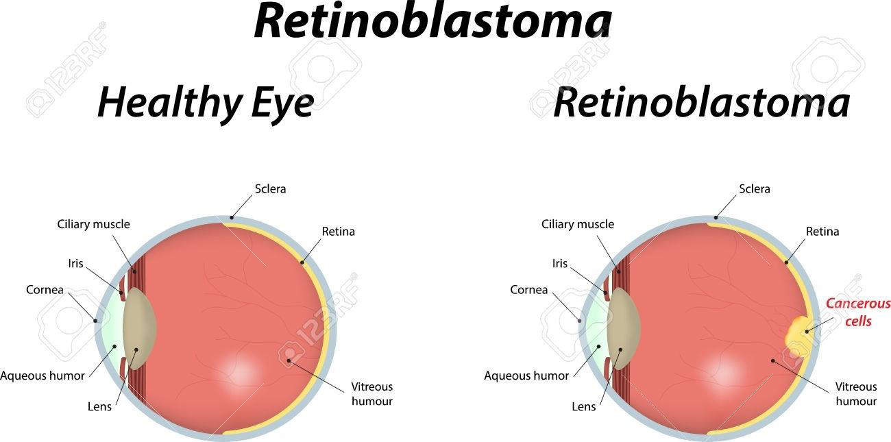 Greater Incidence Of Babies With Retinoblastoma In US-Born Latinas